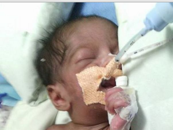 I am fundraising to Help Baby Vanshu get off the ventilator
