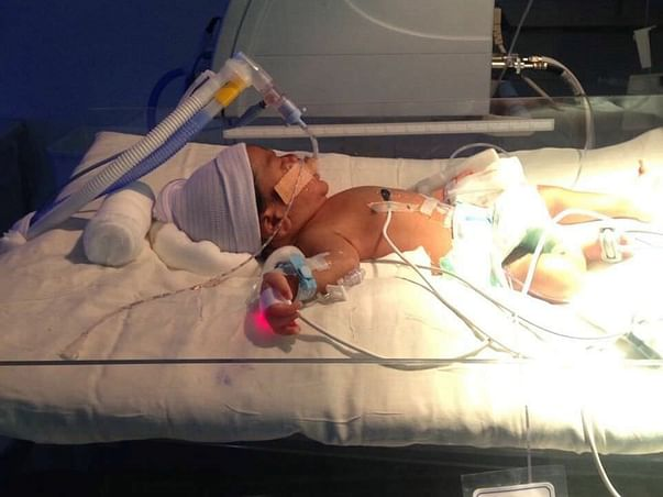 Help This 6-Day-Old Baby Stay Alive