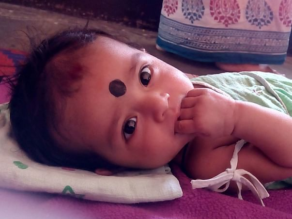 Help little Dimple for her Bone marrow transplant