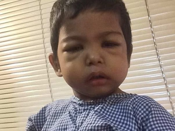 2yrs Baby Fighting with Liver Cell Failure