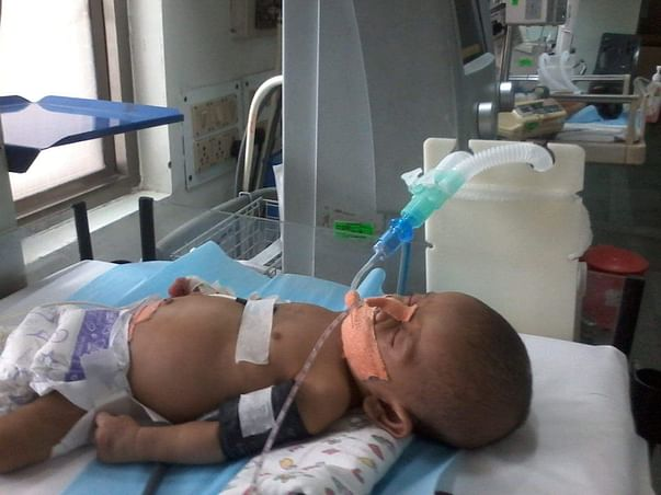 Help save baby Ghansham who's fighting against Shock& respiratory fail