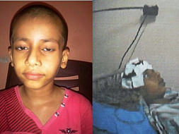 Support for little Jayesh Dangle suffering from NMDA ENCEPHALITIS WITH