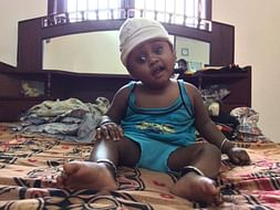 Baby Nidarshan Needs An Urgent Surgery To Replace His Skull