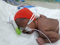 New Born Baby Needs Your Support To Live