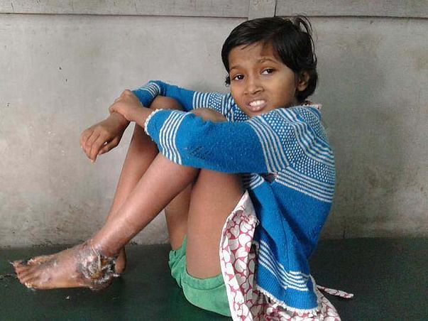 Help this 10-year-old girl so that she doesn't lose her leg !