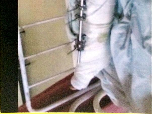 Operation and rehabilitation cost of Manobar Gajnavi'sleg