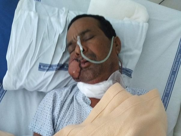 PLEASE HELP MY FATHER TO FIGHT WITH CANCER