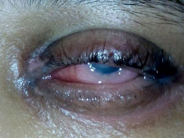 Help me gain my vision back