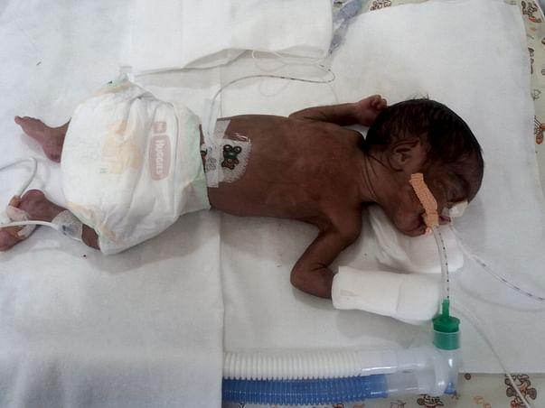 Help twin babies of Ramani get ventilator support