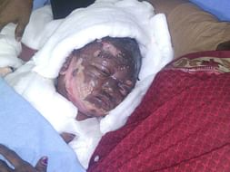 Help this 16 month old baby girl who is suffered serious burns.