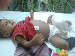 Save Burhanuddin, Liver transplant required