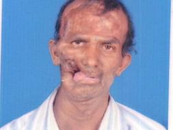 Help this 48-year-old fisherman with facial deformity
