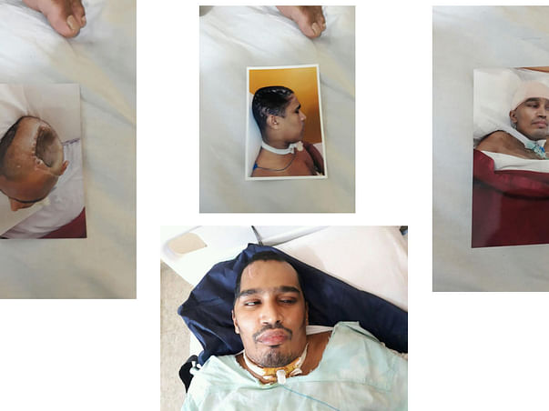 Help Arbaz who met with Accident and is in Coma