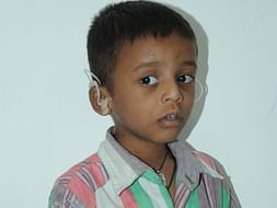 This Little Boy Has Not Heard Or Spoken A Word Since His Birth