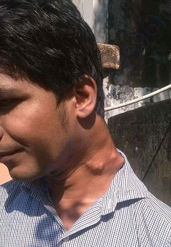 Rameez with his current growths in left neck