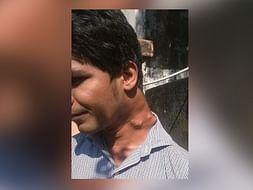Save Rameez Khan From Paralysis
