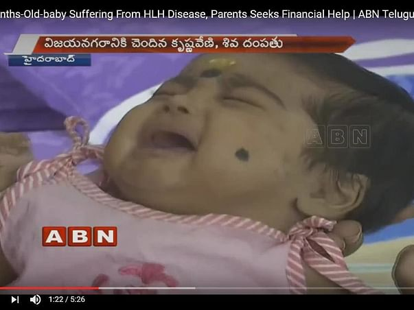 This 4-month-old baby needs our help to stay alive.
