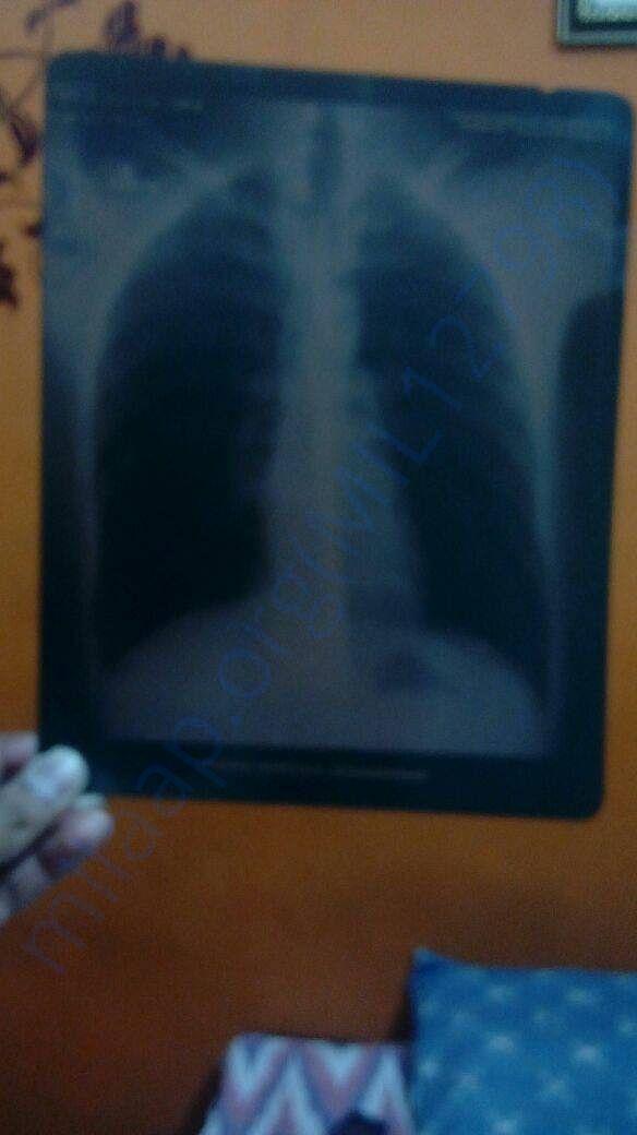 More MRI Scan Report