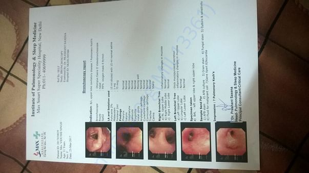 BRONCHOSCOPY REPORT