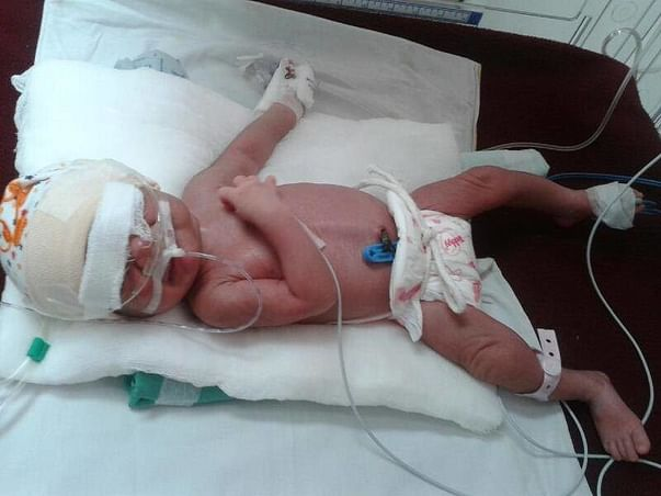 Please help my 1-week-old baby fighting for his life