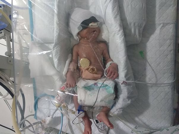 Nilam's New-Born Twins Need Your Help Funding Their Treatment