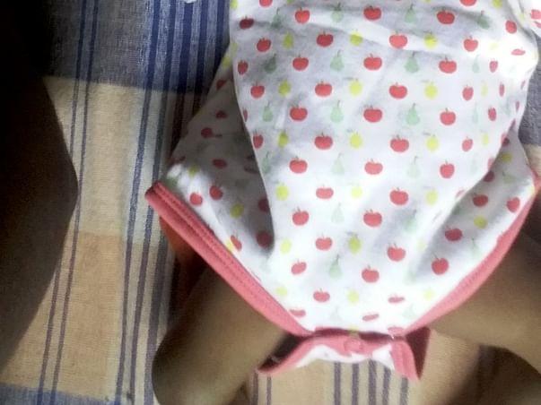 6-month-old Baby Nainitha Needs To Undergo Liver Transplant