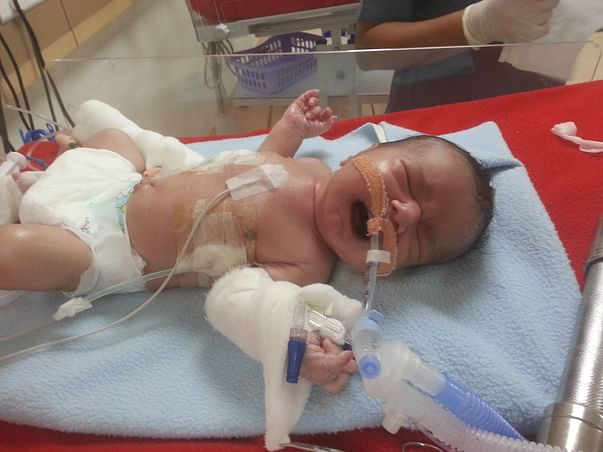 Help This Premature Baby Get Ventilator Support