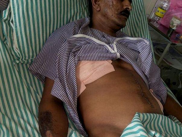 Help Srinivas Undergo MDCT Chest Surgery