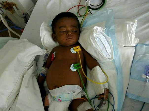Help 1-year-old Aswin undergo an urgent liver transplant