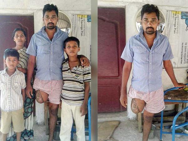 Help for Artificial  limb and Livelihood