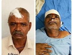 Help for Y Muthyallu double brain hemorrhage operation