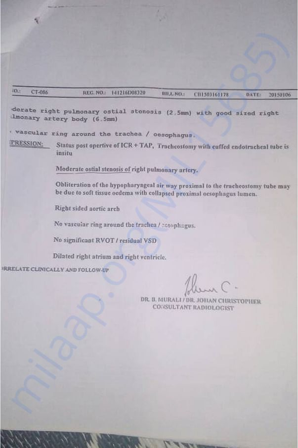 Heart Surgery document