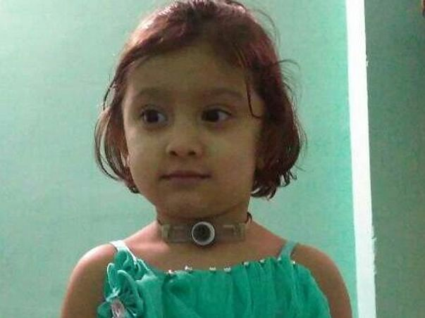 Aid Baby Asra Fight Cancer