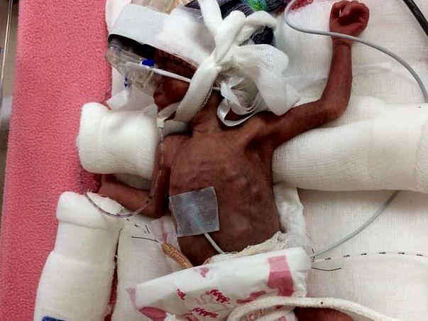 Help Baby of Sumedha Get Ventilator Support