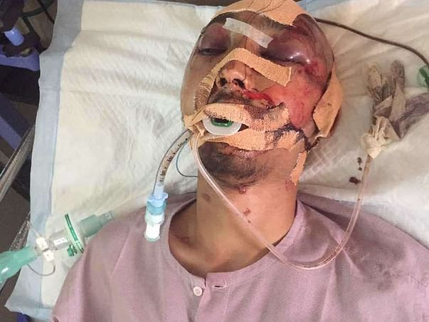 Help Darshan Recover From A Serious Accident