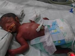 Mamathas Baby Was Born Extremely Premature At 26 Weeks. Please Support
