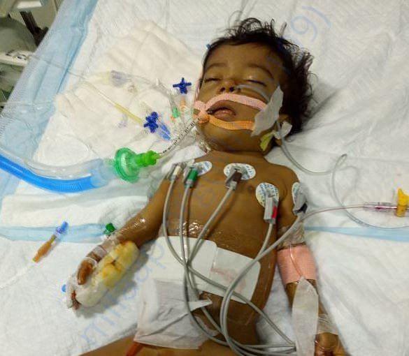 After Liver Transplantation- Currently in ICU