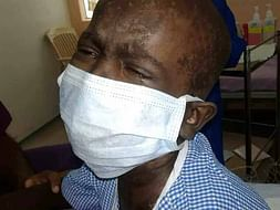 10 Years, 200 Transfusions, 1 Surgery & He Is Still Fighting To Live