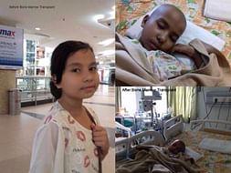Help A Precious Daughter Pragya For Her Bone Marrow Treatment