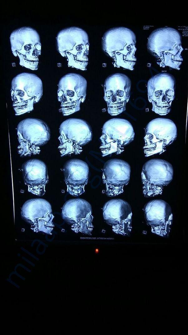 X-ray 2