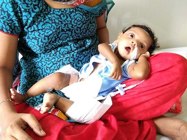 5-month-old Has Diarrhea About 15 Times A Day And Cannot Breastfeed