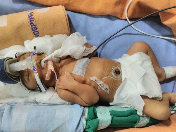 Help Baby Of Arun Kumar To Reach Home Safely From NICU