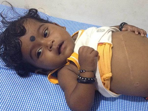 4 years old Baby Mahonnatha needs your help for Post Liver transplant care