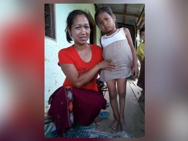 Help 6-Year-Old Themneiphal Recover From Rectovaginal Fistula