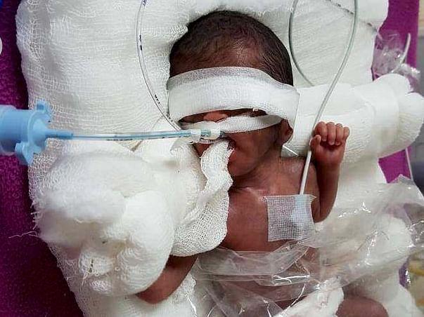 Extreme Premature Baby Fight Respiratory Distress