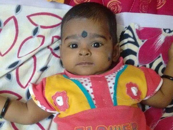Help Baby Ridhi Undergo A Liver Transplant