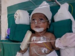 Help Preterm Twins Of Pallavi Suffering From Chronic Lung Disease