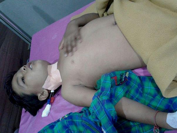 My Child Krishna Hitesh Dhamecha Is A Thalassemia major Patient