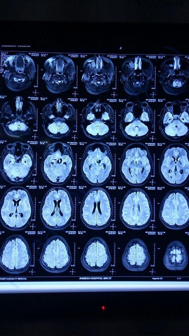 MRI Brain -2
