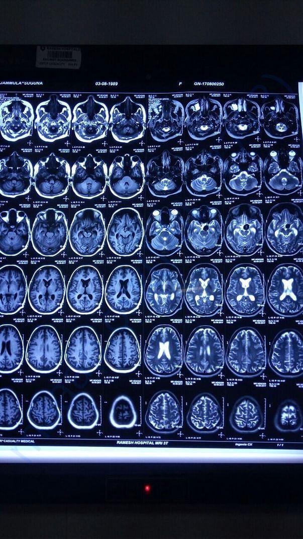 MRI Brain -3